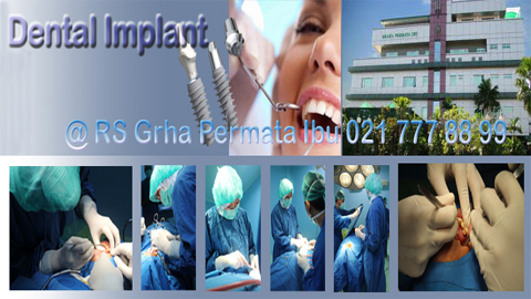 dokter-implan-gigi-murah-bedah-mulut-jpg